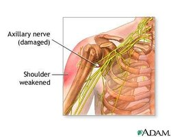 Shoulder Nerve Damage Symptoms