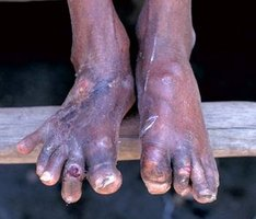 medications cause gout list can gout cause muscle twitching