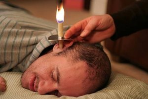 One method for using ear candles involves resting the head on a flat surface.
