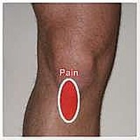 Treat an Inflamed Patellar Tendon