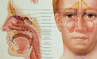 What Is Pan Sinus Disease?