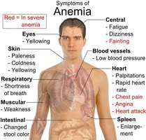 Symptoms of Anemia in Adults
