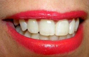 Cure gum disease with home remedies.