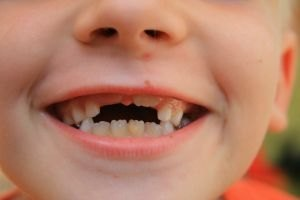 Shark Teeth in Children