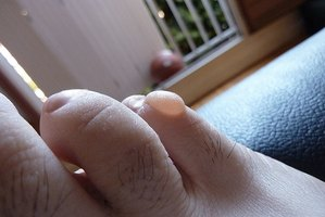 A blister on a toe