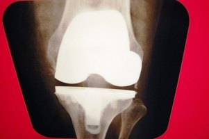 X-ray of the knee.