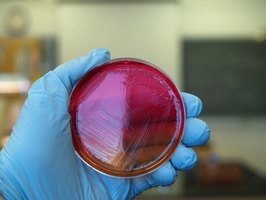 Bacteria in a petri dish is shown.