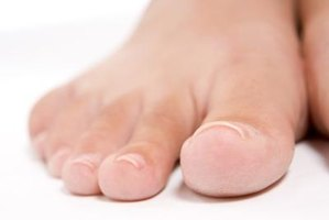 Curved toenails can eventually become ingrown.