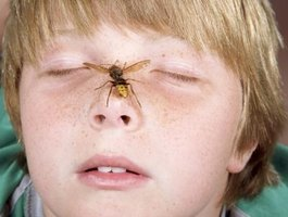 Wasp stings can cause swelling and extreme pain.