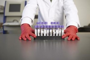 Creatinine clearance can be tested with a blood test.