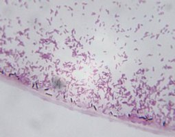 Identifiable by their long rod-like shape, clostridium bacteria take on many forms, from botulism to tetanus.