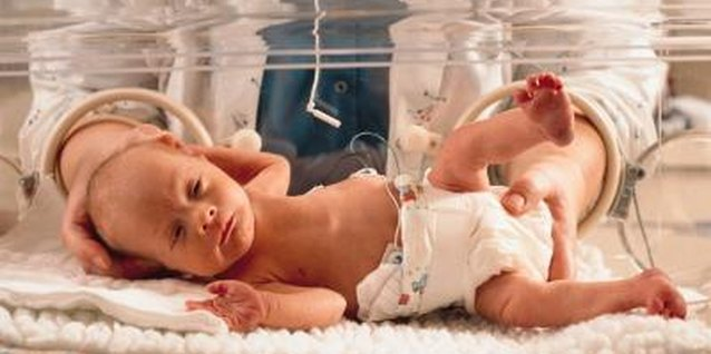Premature babies face different issues than babies who don't gain weight after birth.
