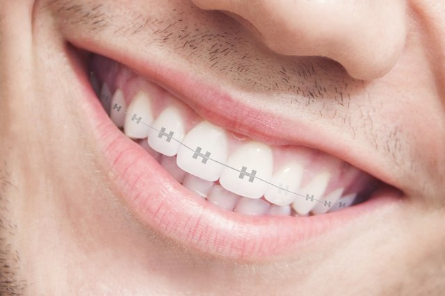 How to Stop Gum Swelling Associated With Orthodontic ...  How to Stop Gum...