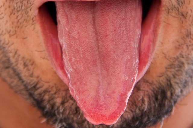 How to Use Salt to Cure White Tongue
