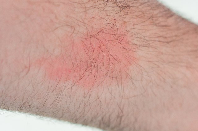How to Stop a Rash From Itching