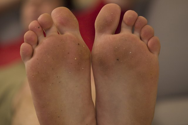 How to Get Dry Skin Off the Bottom of Your Feet