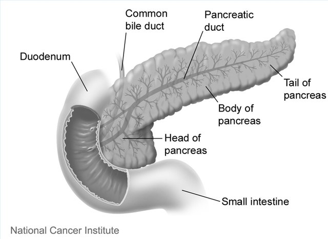 what are the stages of pancreatic Stage 4 pancreatic cancer has spread from the pancreas into other organs in the body though it's the most advanced stage, there are still treatment options  understand the stages, progression .