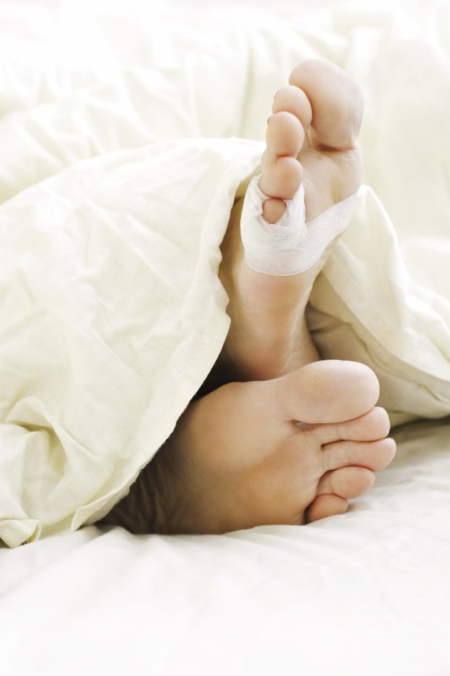 Tape is used to hold a toe in place after phalangeal surgery.