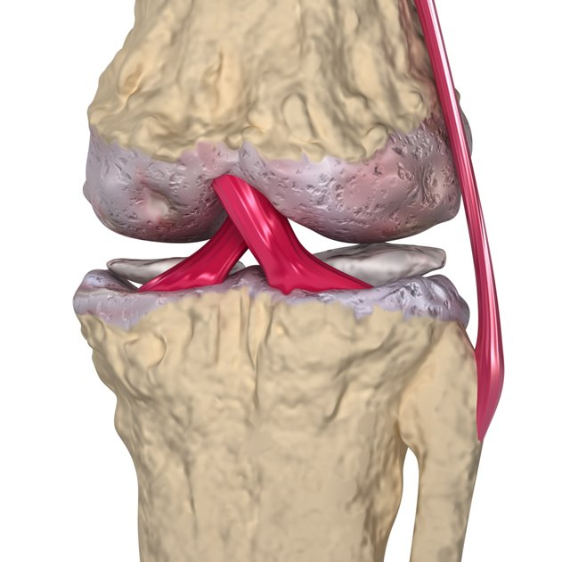 3D model of osteoarthritis of the knee.