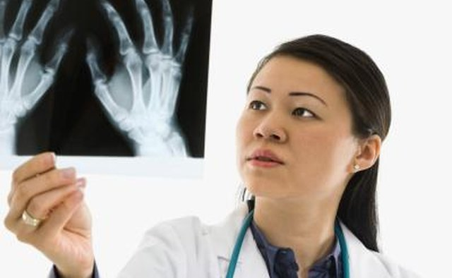 Bone age is determined by an x-ray of the left hand and wrist.