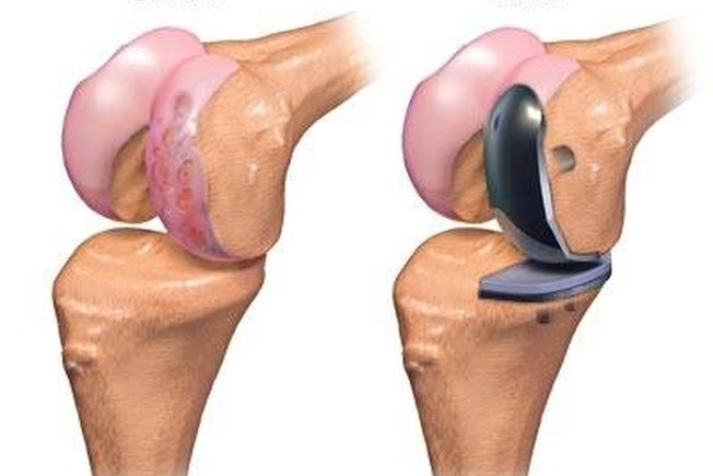 [Article Image] - Partial Knee Replacement Surgery