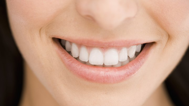 Many people don't like their own smile because of their less-than-white teeth. Several factors contribute to discoloration, including smoking, medications such as tetracycline, tooth decay, aging, thinning enamel and diet. But while many foods can stain your teeth, some can make them whiter.