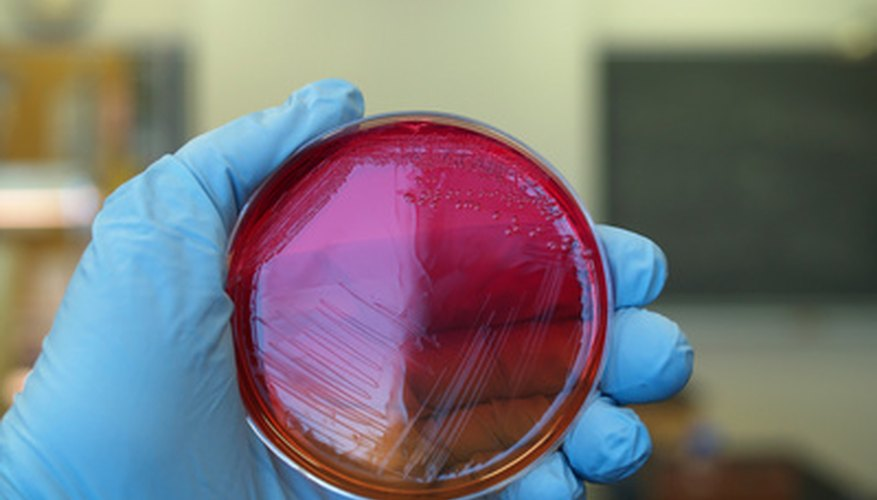 You can prepare nutrient agar at home to study bacterial growth.