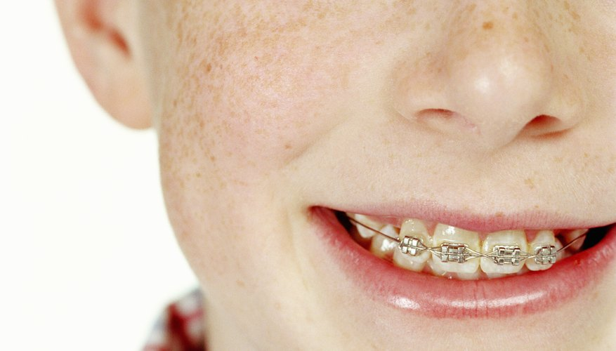 If the budget won't allow for braces, get creative with financing them.