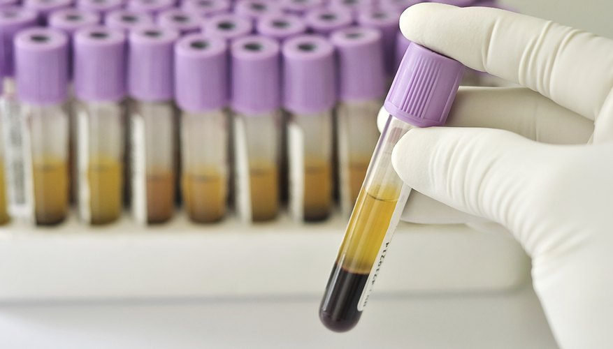 A lab technician is holding a blood filled test tube.