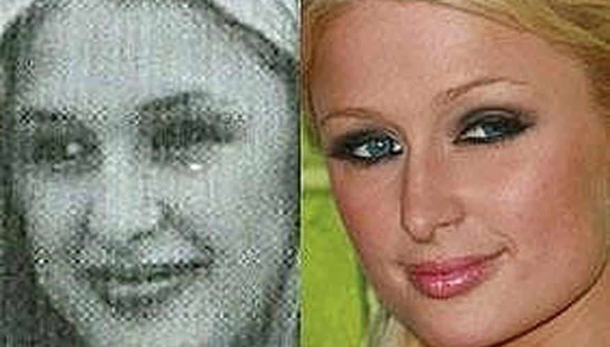 Paris Hilton's Nose Job