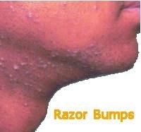 How Long Do Razor Bumps Last?
