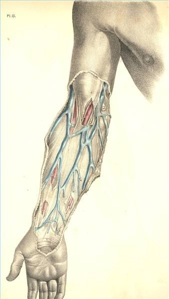 basilic vein thrombosis treatment | ehow, Cephalic Vein