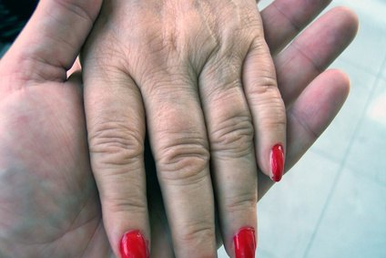 Dupuytren's Disease may also cause thickening on top of the knuckles.