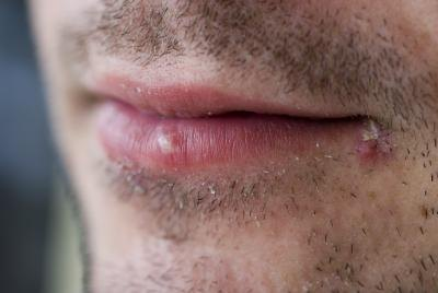 Man with sores on mouth