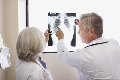 Doctors examine the chest x-ray of a patient.