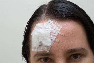 Head injury may cause double vision.