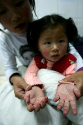Two year old girl with hand, foot, and mouth disease