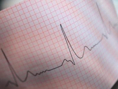 how to stop heart palpitations from alcohol