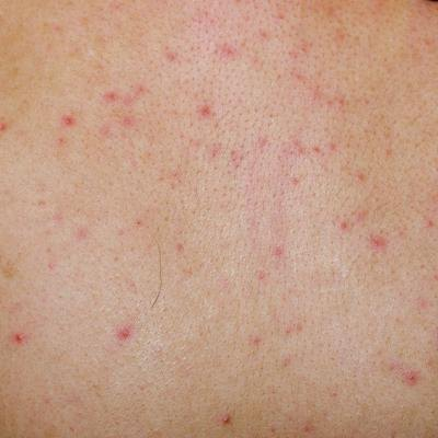 Forum on this topic: How to Prevent Hives, how-to-prevent-hives/