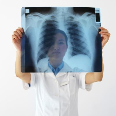 Doctor examining x-ray of lungs.