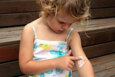 Young girl applying cream to her eczema