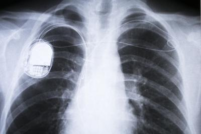 X-ray of human chest with pacemaker installed.