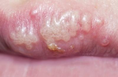 Herpes on the mouth.
