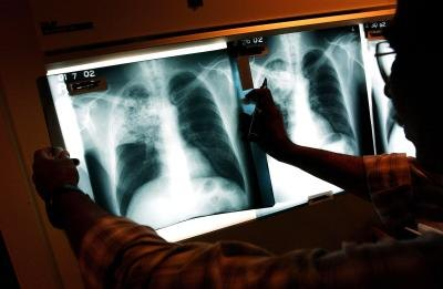 X-rays of tuberculosis affecting a patient's lungs