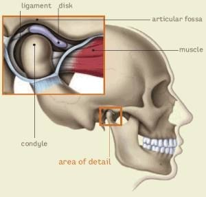 How Does TMJ Affect The Body?