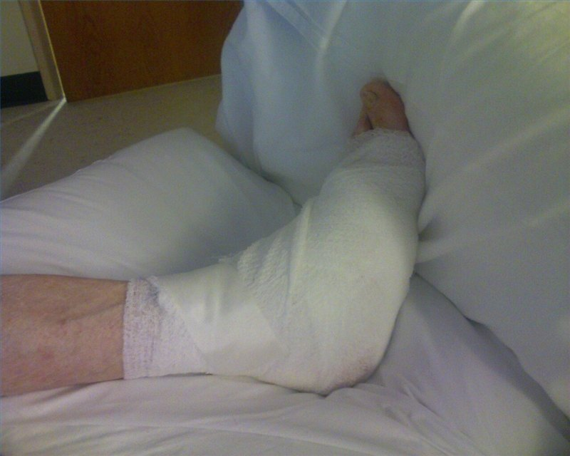 Hospital Swing Bed Reimbursement