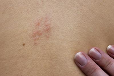 Raised bumps caused by shingles.