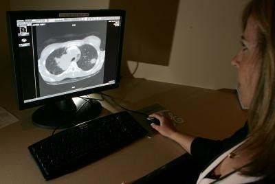 Radiologist viewing CT scan of lungs with thickening.