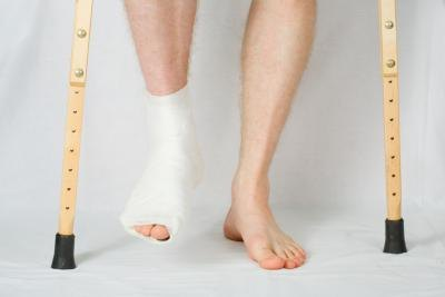 How to recover from broken ankle surgery.