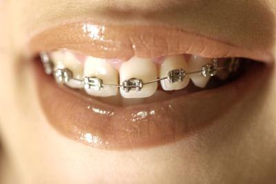 Best Way to Whiten Teeth With Braces
